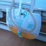 腎不全とバルーンカテーテル